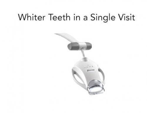 Whiter Teeth in a Single Visit