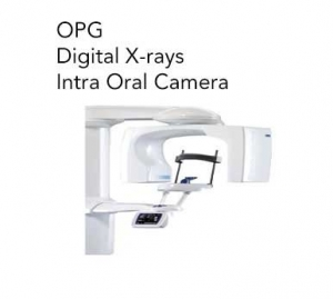 OPG, Digital X-rays & Intra Oral Camera